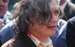 Senator A. Navarro bleeds after a police hit him at the march