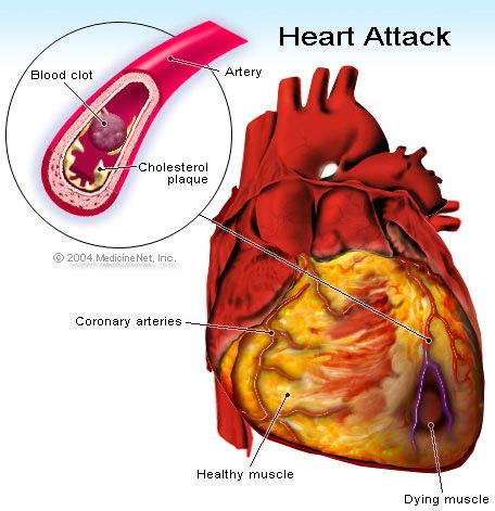 white-ass-trans-fat-coronary-heart-disease-thailand-girl