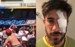 Left: The Boca Juniors bus under attack from hooligans. Right: Boca's Pablo Pérez as he returned to the stadium from the clinic released the picture on social media.